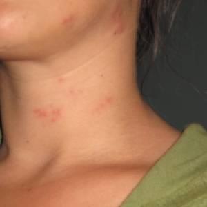 аллергия на кофе симптомы фото